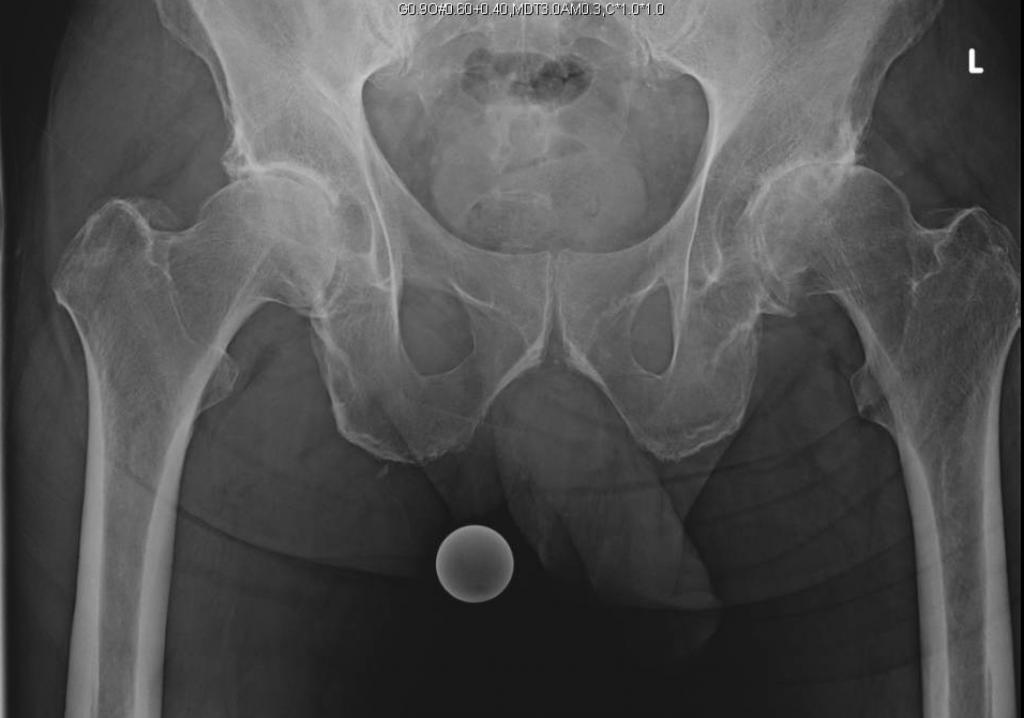 Bilateral Outpatient Anterior Tha Darwin Chen Md